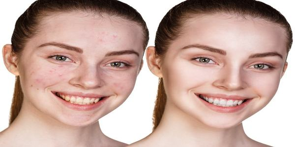 How To Get Rid Of Hard Whiteheads On Face Naturally
