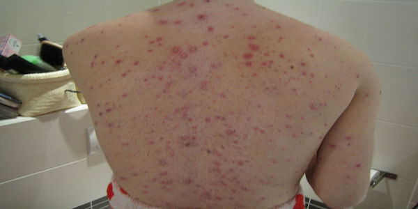 how to get rid of back acne overnight
