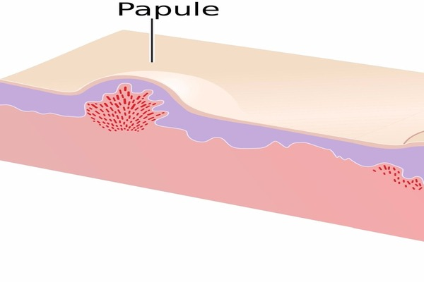 how to get rid of papules